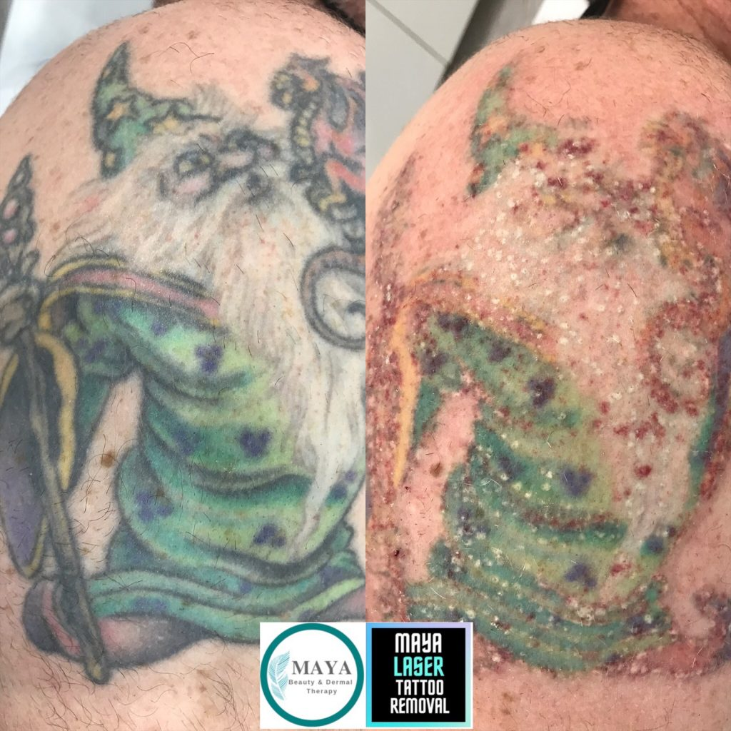 MAYA LASER TATTOO REMOVAL Before and After